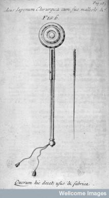 RHYNE, Willem ten Dissertatio de arthritide[...]: De acupunctura:[...] London: R. Chiswell, 1683. L0029014