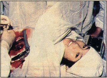 Cirurgia usando anestesia com acupunctura.Crédito: Dr. Rosenfeld